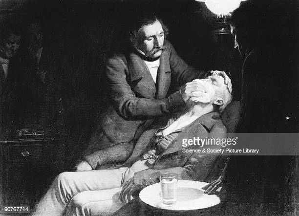 First use of ether in dental surgery Boston USA 1846 Painting showing Boston dentist Doctor William Thomas Green Morton conducting the first...