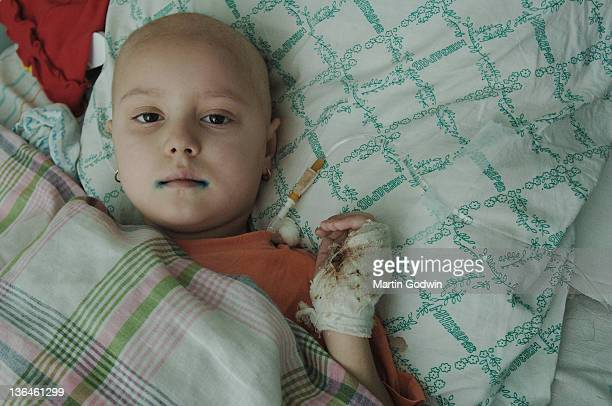 Five yearold Anastasia suffering from leukaemia with green paint on her lips to treat fungal infection and a bandaged hand with blood an inpatient at...