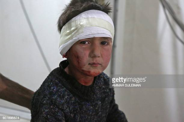 TOPSHOT Fiveyearold Anas receives treatment at a makeshift hospital in Kafr Batna after he was wounded in a reported government air strike as he was...