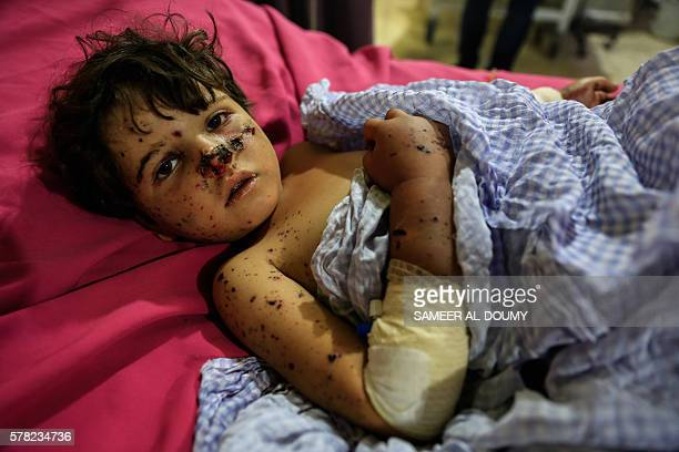 TOPSHOT Fiveyearold Syrian girl Rima lies in a hospital bed on July 21 2016 as she undergoes treatment at the Department of Care in the Unified...
