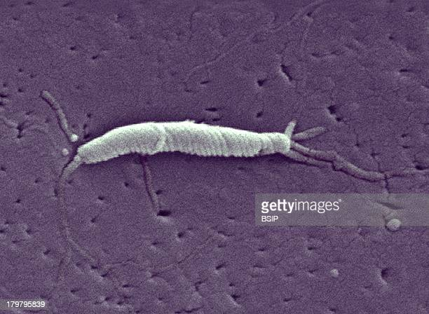 Flexispira Rappini Organisms Cell Wall And The Presence Of Bipolar Multiple Flagella