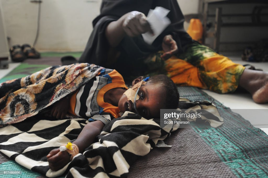 Somaliland Children At Unicef Center Recover From Acute Drought Illnesses : News Photo