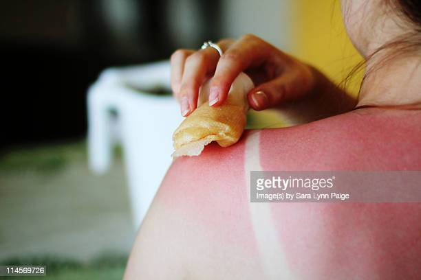 Folk remedies for sunburn