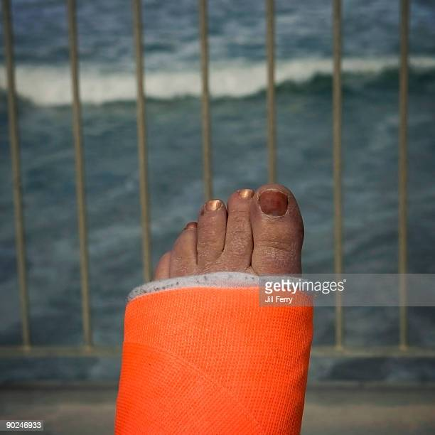 foot encased in cast with exposed toes - 人のつま先 ストックフォトと画像