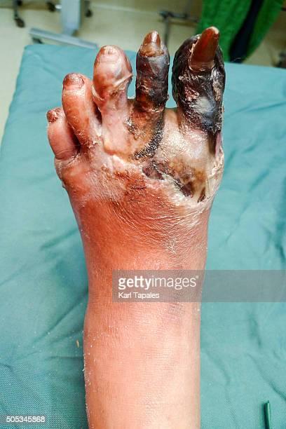 foot gangrene - necrose imagens e fotografias de stock