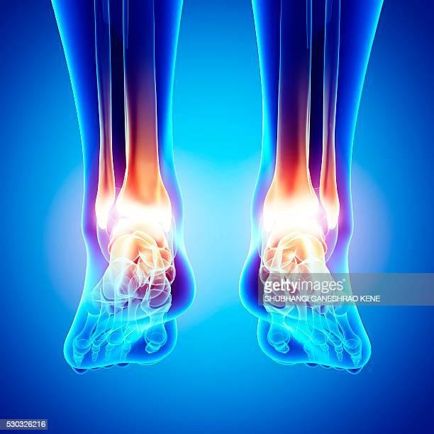 foot pain, computer artwork. - gliedmaßen körperteile stock-fotos und bilder