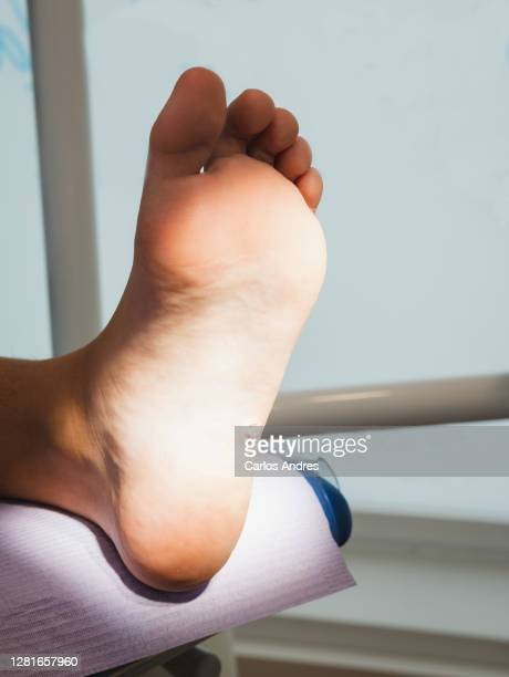 foot with a wart verrucas plantar being treated by a podiatrist - verruca plantare foto e immagini stock