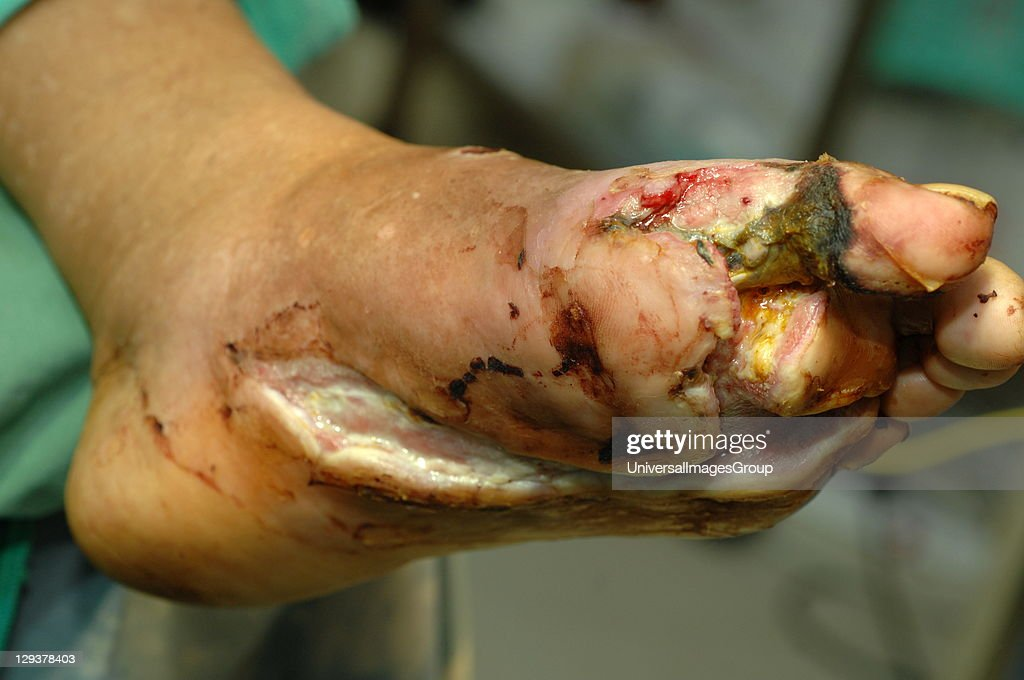 Foot with widespread destruction of human tissues due to bacterial infection : News Photo