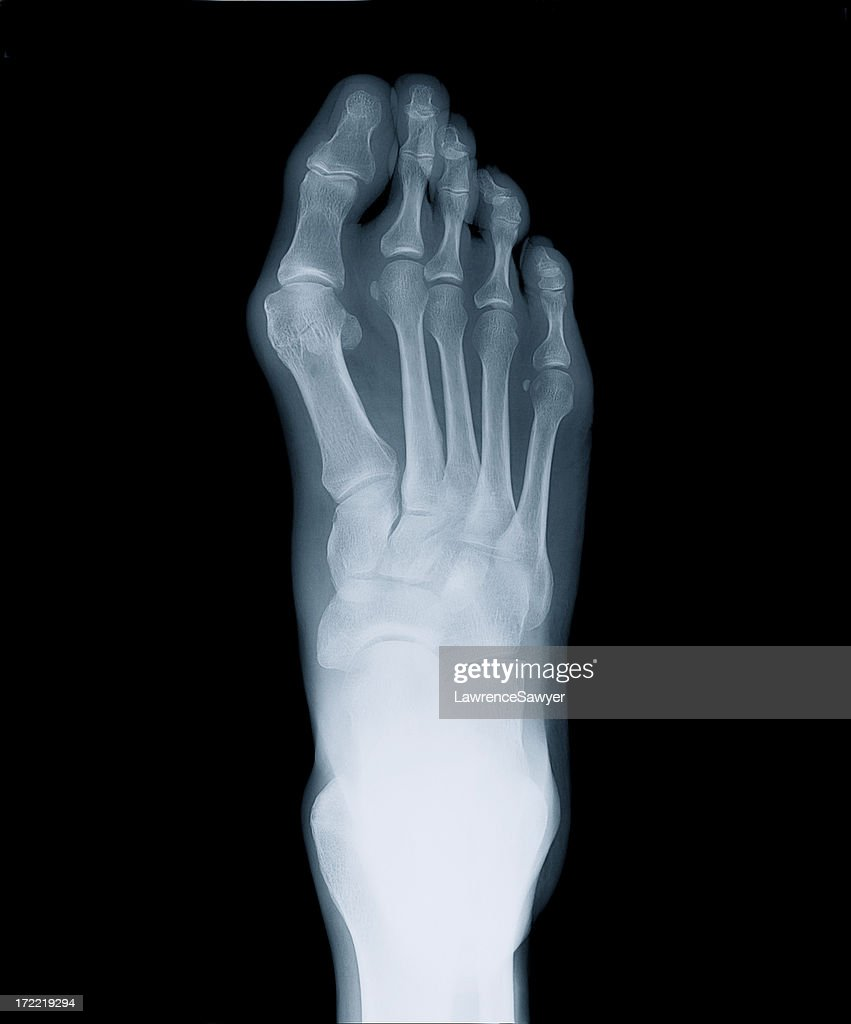Leg Xray Stock Photos and Pictures | Getty Images