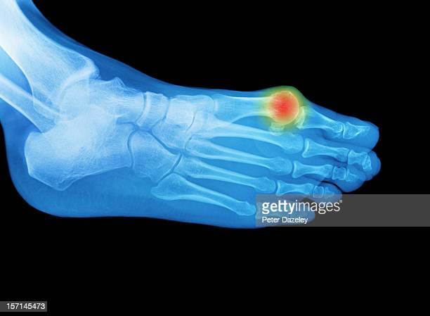 foot x-ray with an area of pain or swelling - hallux valgus photos et images de collection