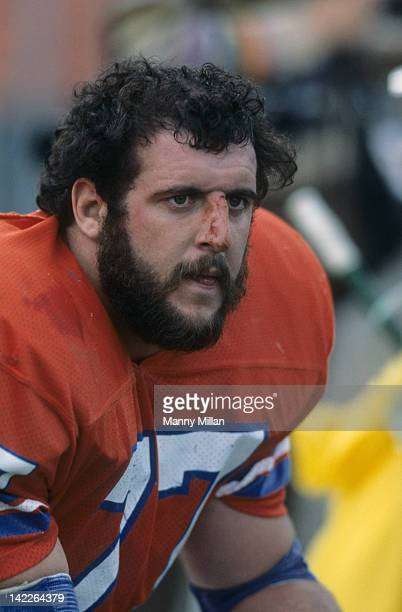 Closeup portrait of Dener Broncos Lyle Alzado with bloody nose during game vs Kansas City Chiefs at Mile High Stadium Denver CO CREDIT Manny Millan