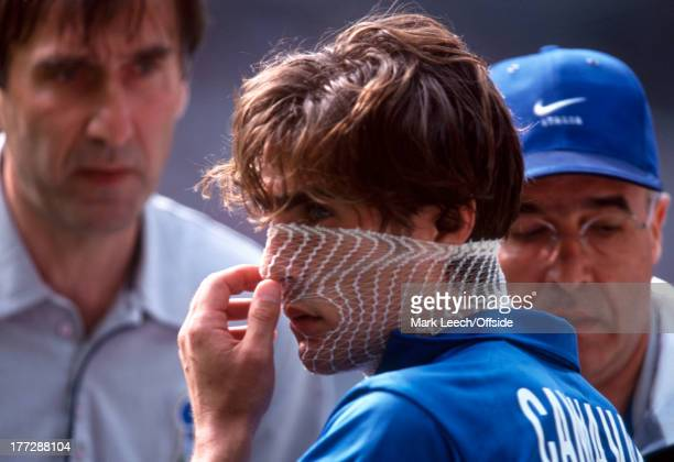 Football World Cup 1998 Italy v France Fabio Cannavaro has his face bandaged following a clash with Guivarc'h