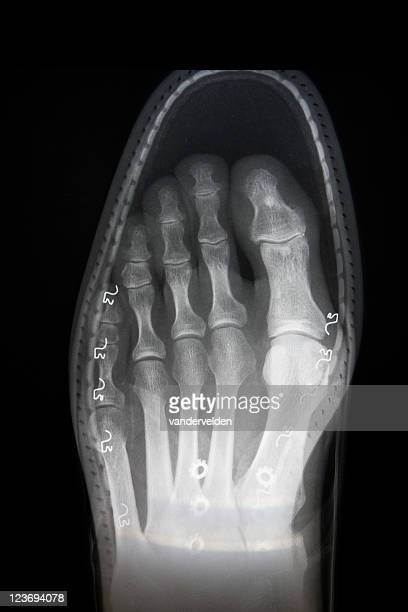 chaussures x-rayed - hallux valgus photos et images de collection