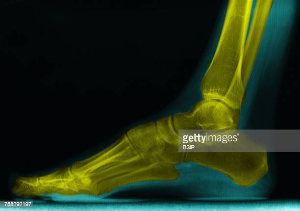 Foot,x-ray