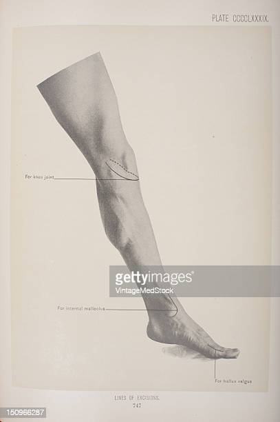 For the knee joint internal malleolus and hallux valgus 1903 From 'Surgical Anatomy The Treatise of the Human Anatomy and Its Applications to the...