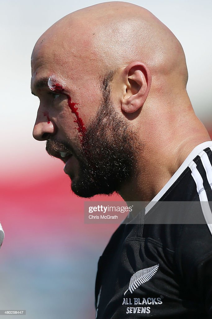 DJ Forbes #4 of New Zealand suffers a cut to his eye against Fiji during the Tokyo Sevens, in the six round of the HSBC Sevens World Series at the Prince Chichibu Memorial Ground on March 23, 2014 in Tokyo, Japan.