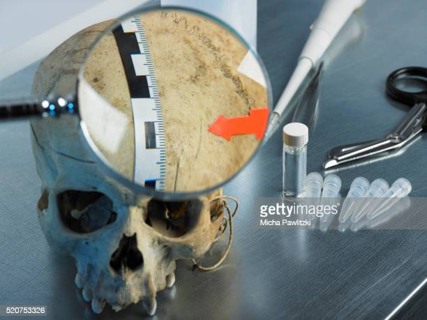 Forensic Analysis of Skull for Criminalistic Investigation