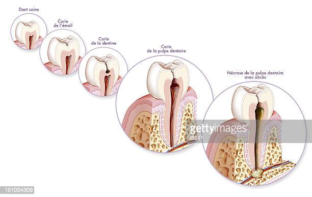 Formation And Development Of A Tooth Decay From Left To Right Healthy Tooth Tooth Decay That Attacks The Enamel Stage 1 Tooth Decay That Affects The...