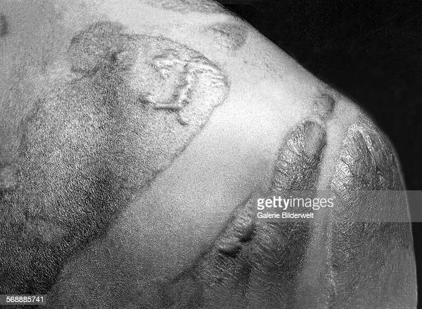 Formation of keloidal scars on the back and shoulder of a victim of the Hiroshima blast. September, 1945. The scars have formed where the victim's...