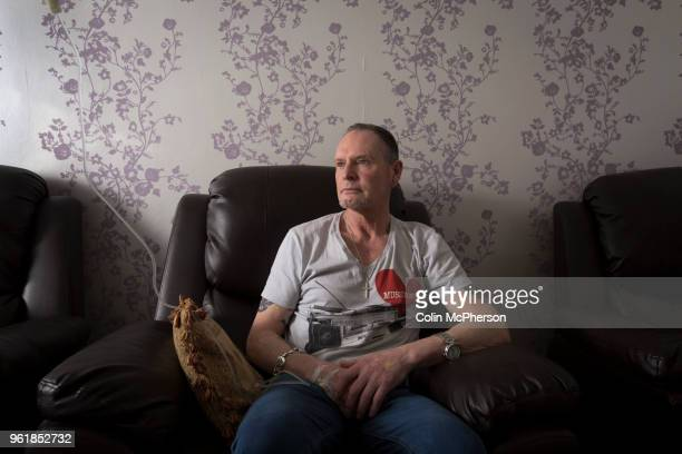 Former international footballer Paul 'Gazza' Gascoigne undergoing a nutrient infusion at Cassiobury Court a drug and alcohol rehabilitation clinic in...