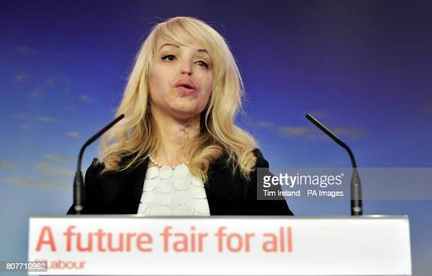 Former model and acid attack victim Katie Piper at a press conference for Labour's plans for safer communities at the party HQ in Victoria Street...