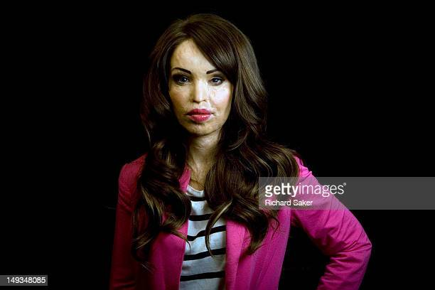 Former model and tv presenter Katie Piper who was a victim of an acid attack and now runs the Katie Price Foundation which aims to raise awareness of...