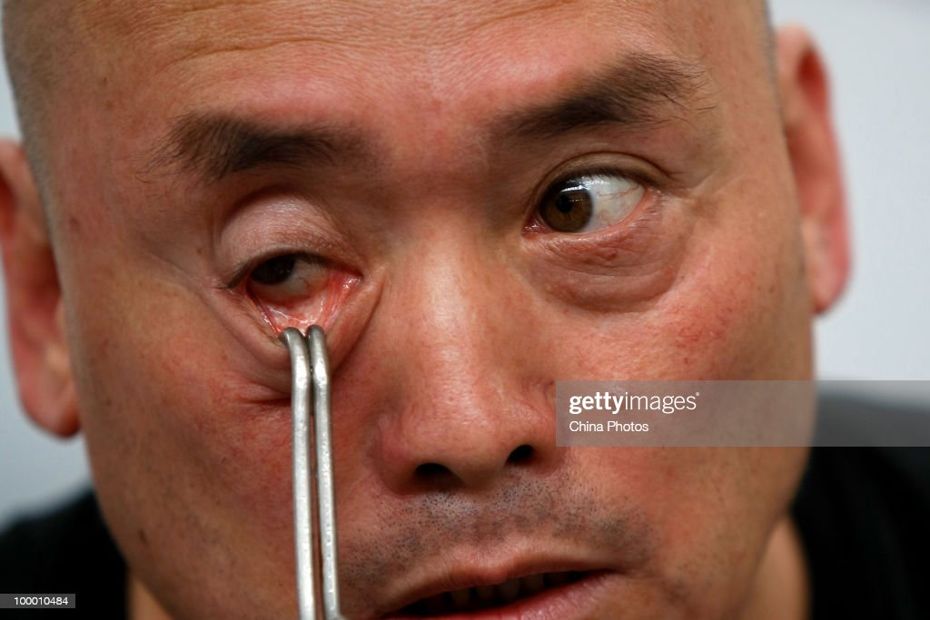 Forty-eight year old Dong Changsheng hooks a rope on one lower eyelid on the preparation of pulling a 560 kilograms (about 1,234.8 pounds) amphibian aircraft for about 5 meters (about 16.4 feet) as he performs a stunt on May 20, 2010 in an exhibition center in Changchun of Jilin Province, China. Dong has performed stunts around the country since 1991 through the help of Qigong, a system of deep breathing exercises, according to local media.