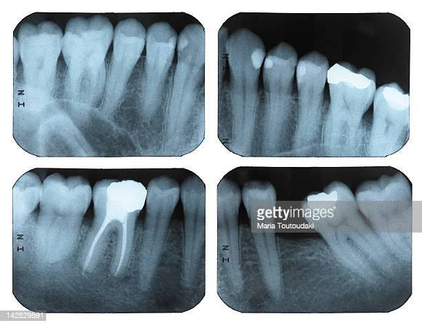 Four dental X-rays