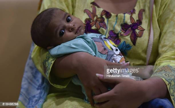Four Month old Pakistani boy Rohaan after successful surgery at Jaypee Hospital on July 18 2017 in Noida India The boy underwent a five hours long...