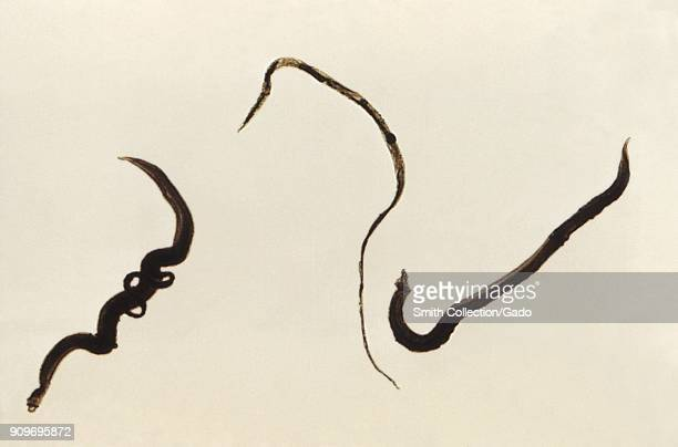 a description of schistosomiasis a disease caused by small parasitic flatworms The increased risk of schistosomiasis caused by high frequency of is an acute and chronic disease caused by parasitic trematode schistosomiasis is parasitic.