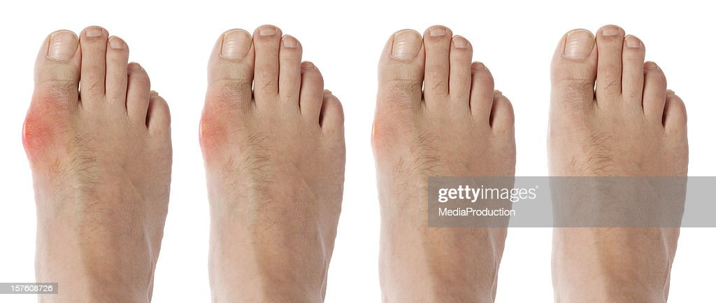 four stages orf gout arthritis : Stockfoto