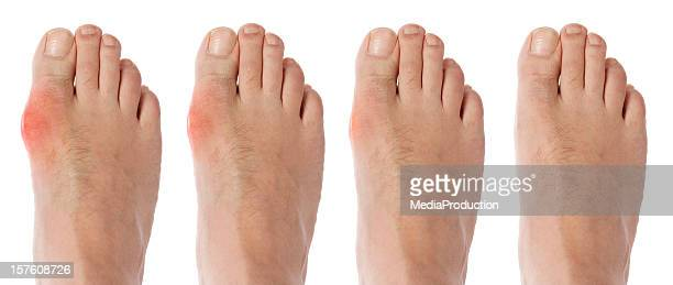 four stages orf gout arthritis - gout stock photos and pictures