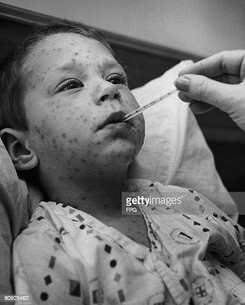 Four year-old boy with chicken pox has his temperature taken, circa 1955.