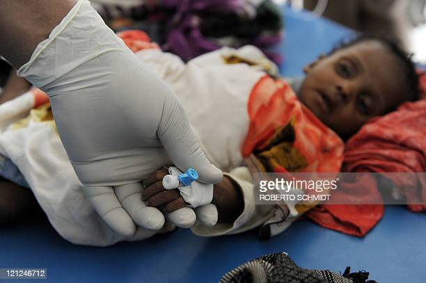 Fourmonthold Hamsa is tended to by a doctor on a table in a corridor of a local hospital on August 16 2011 Hamsa was according to a doctor on site in...