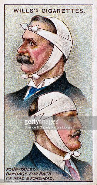 'Fourtailed bandage for back of head and forehead' Wills' cigarette card 1913 One of a series of 50 'First Aid' cigarette cards issued by W D H O...