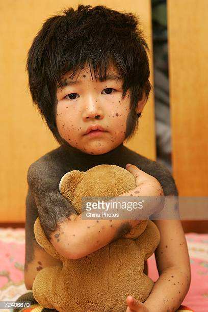 Fouryearold Chinese girl Jiaxue who suffers from hairy black moles sits on a bed at home November 4 2006 in Changchun of Jilin Province China Jiaxue...