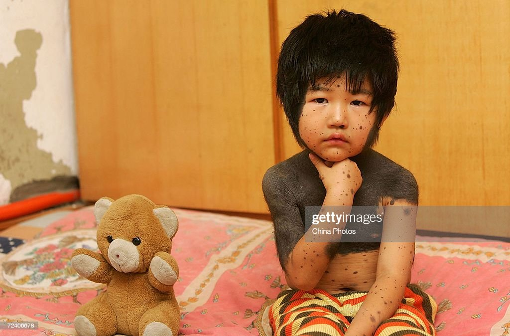 chinese girl with hairy black moles waits for treatment photos and