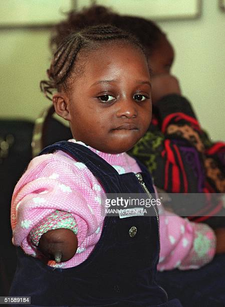 Fouryearold Menumatu Mansaray from Sierra Leone attends a press conference conducted by World Vision and other human rights groups 14 February 2001...