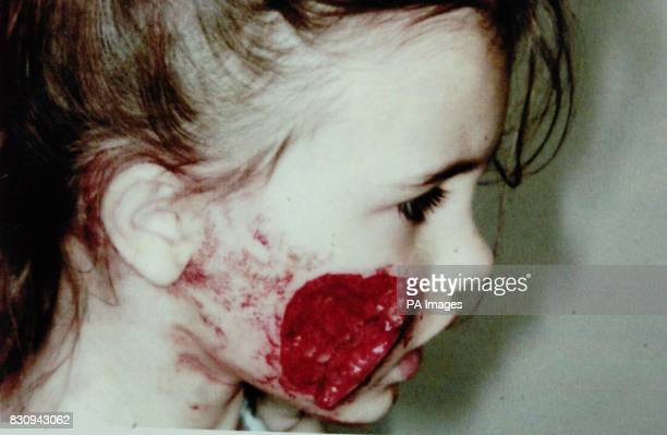 Fouryearold Teoni Fletcher before undergoing emergency facial surgery after being attacked Friday 23th August by a neighbour's bull mastiff The dog...