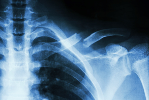 fracture left clavicle 491244725