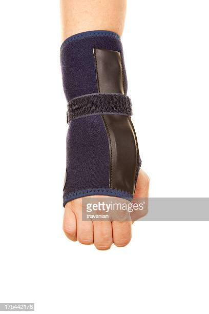 fracture of arm - cut wrists stock photos and pictures