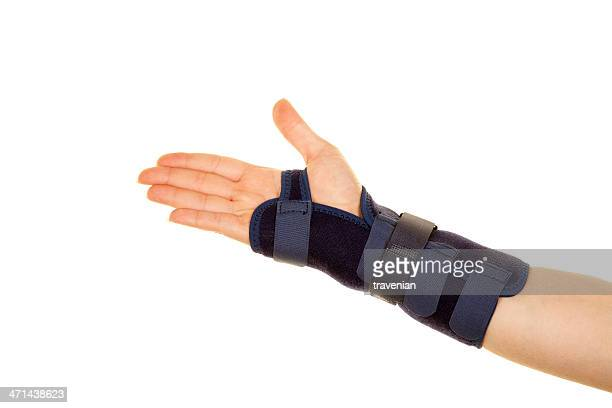 fracture of arm - cast colors for broken bones stock pictures, royalty-free photos & images