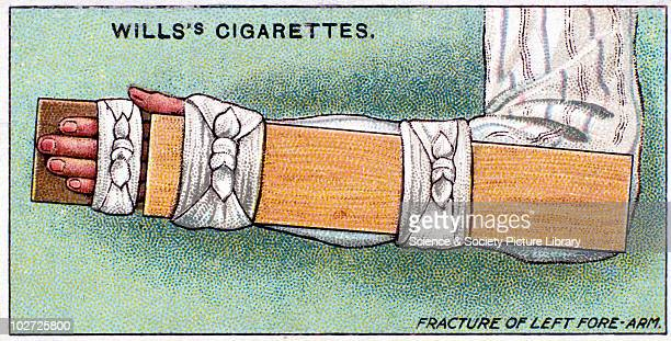 'Fracture of left forearm' Wills' cigarette card Wills' cigarette card 1913 One of a series of 50 'First Aid' cigarette cards issued by WD HO Wills...