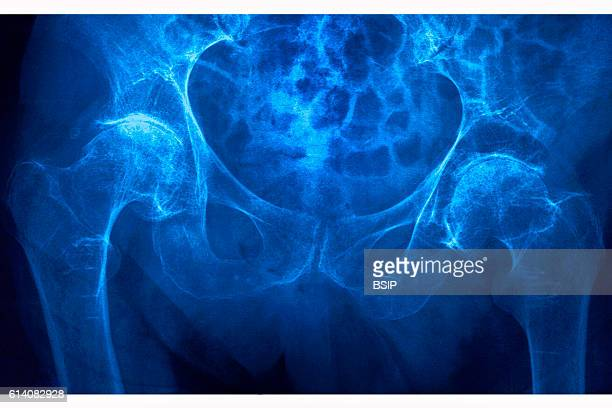 Fracture of the left femoral neck caused by osteoporosis seen on a frontal xray of the pelvis