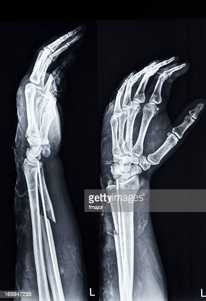 fracture of ulna(arm) and third metacarp(hand) - deformed hand stock pictures, royalty-free photos & images