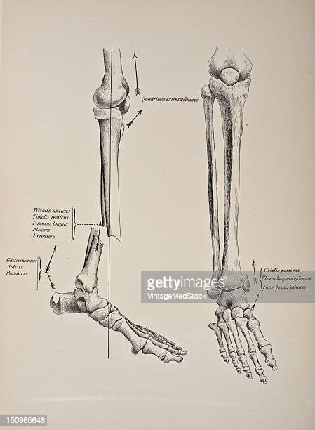Fractures of both bones of the leg are more common than a fracture of either one separately 1903 From 'Surgical Anatomy The Treatise of the Human...