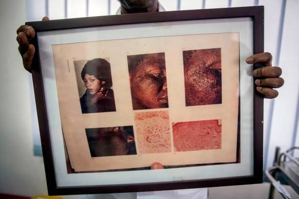 A frame displays pictures of a woman who suffers from Exogenous ...