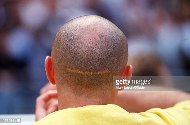 France v Italy World Cup '98 Quarter Final View of bald Frank Le Boeuf and his scar from behind