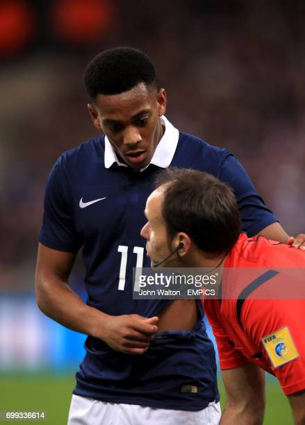 France's Anthony Martial shows the referee Antonio Miguel Mateu Lahoz his ripped shirt