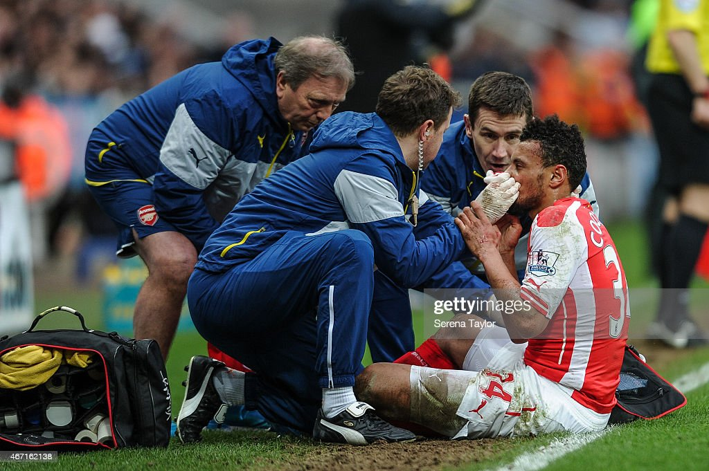 Francis Coquelin (R) of Arsenal holds his nose and receives treatment from the Arsenal medical team on the side of the pitch during the Barclays Premier League match between Newcastle United and Arsenal at St.James' Park on March 21, 2015, in Newcastle upon Tyne, England.